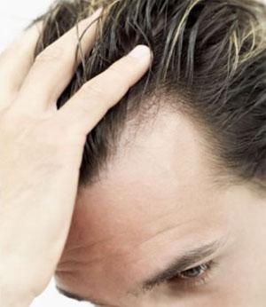 رژیم غذایی مناسب هنگام ریزش مو